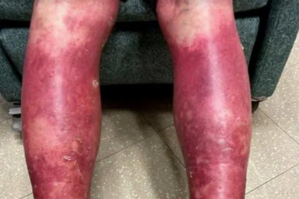 缩略图 | 男子打完新冠疫苗,皮肤剥落,四肢血红!医生震惊:确为疫苗导致!