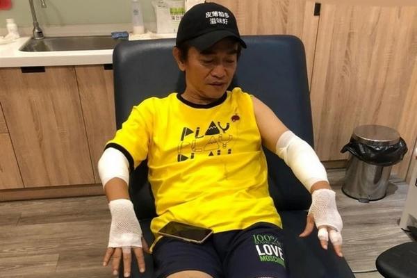 缩略图 | 吴宗宪录节目意外受伤,四肢挫伤并将进行脑部检查